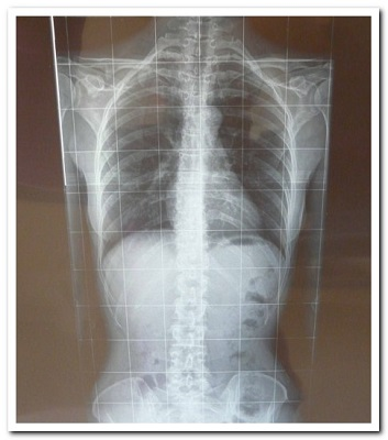 Как лечить врожденный сколиоз позвоночника?
