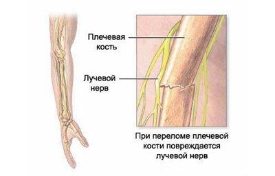 Неврит лучевого нерва: дифференциальная диагностика