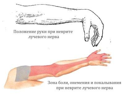 Неврит лучевого нерва и его симптоматика