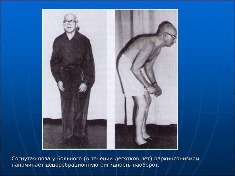 Паркинсонизм - симптомы: походка