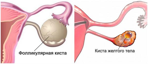 Функциональные кисты склонны к самостоятельному регрессу