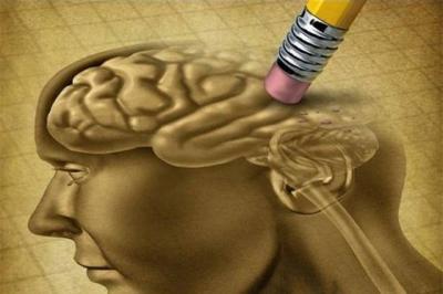Стадии болезни Альцгеймера, классификация заболевания