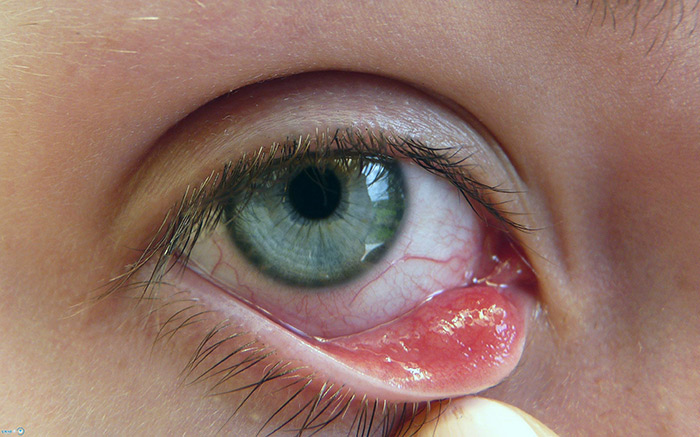 Ребенок глаз