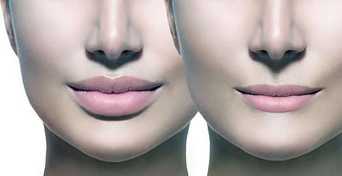 эффект больших губ