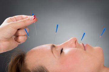 Иглоукалывание при неврите лицевого нерва: показания и противопоказания, правила проведения процедуры, польза и вред