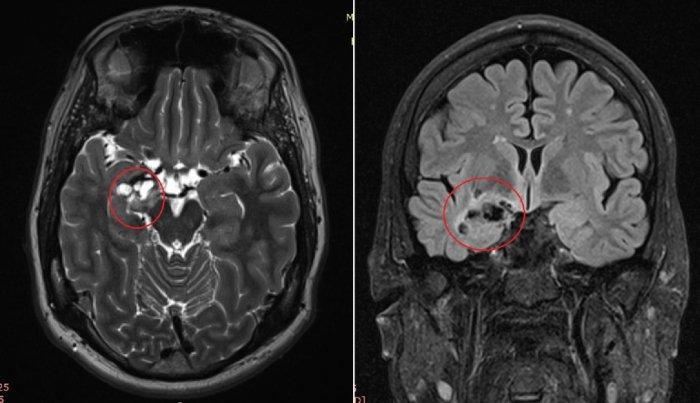 Диагноз эпилепсия: снимок МРТ