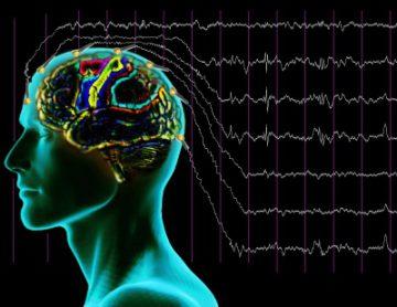 Диагноз эпилепсия