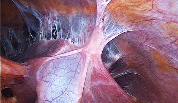 Спайки при эндометриозе