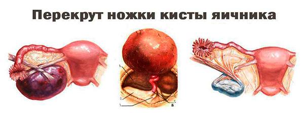Перекрут ножки кисты яичника сопровождается сильным болевым синдромом