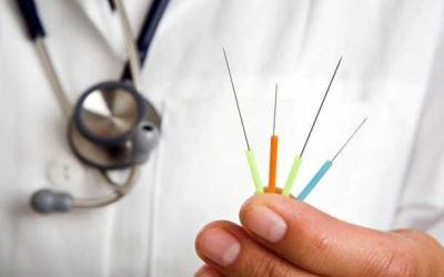 Иглоукалывание при неврите лицевого нерва: виды процедуры