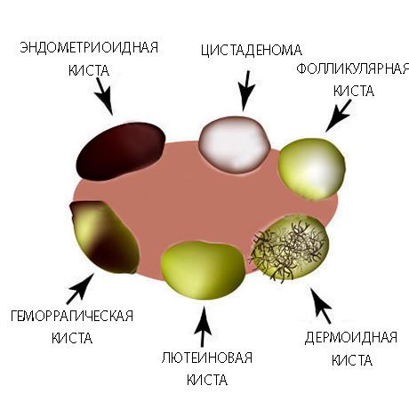 6 видов кист яичника