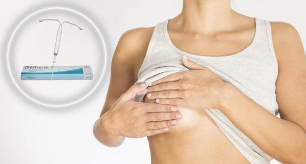 Среди побочных эффектов Мирены может быть боль в груди