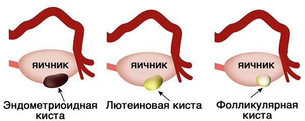 Регулон могут назначить при функциональных кистах яичника