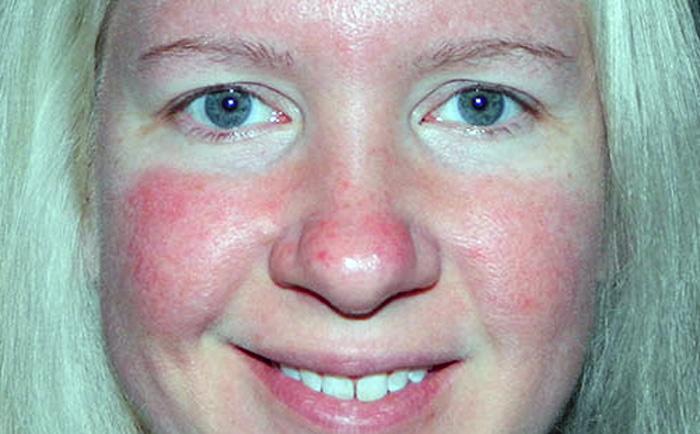 сильная гиперемия кожи