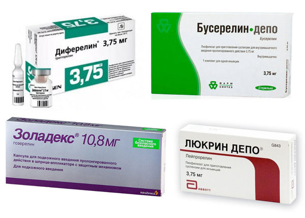 Агонисты гонадотропин-рилизинг гормона при аденомиозе