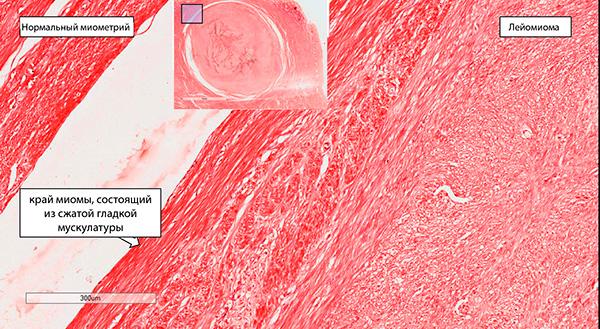 Гистологическое строение миомы