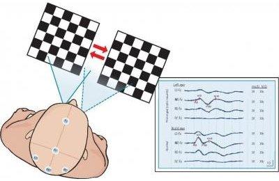 Ретробульбарный неврит: диагностика визуальными вызванными потенциалами