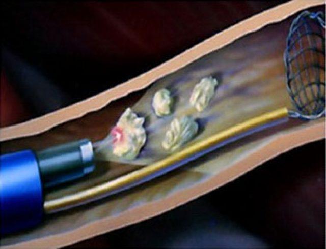 Расширение лоханки почки мочекаменная болезнь
