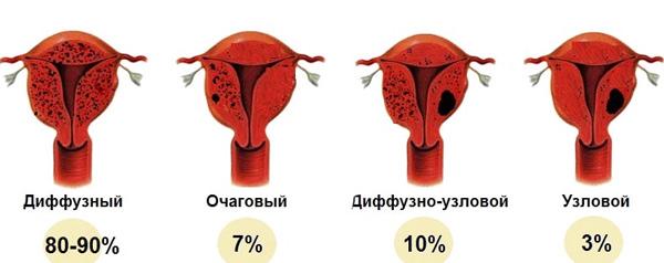 Формы аденомиоза и их распространенность в процентах