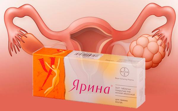 Рассмотрим, какова эффективность препарата Ярина при СПКЯ и можно ли обойтись без гормональной терапии...