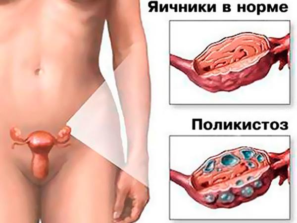 Поликистоз яичников может являться причиной бесплодия