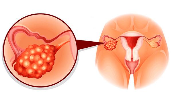 Посмотрим, какова вероятность того, что киста перерастет в рак яичника...