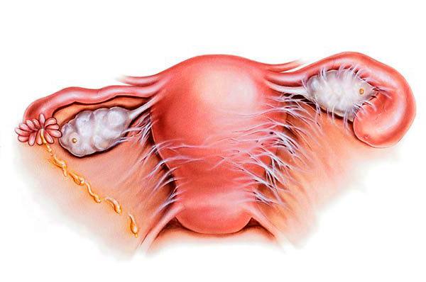 Спаечный процесс органов малого таза