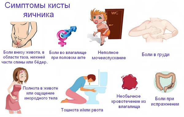 Основные симптомы кисты ячиника