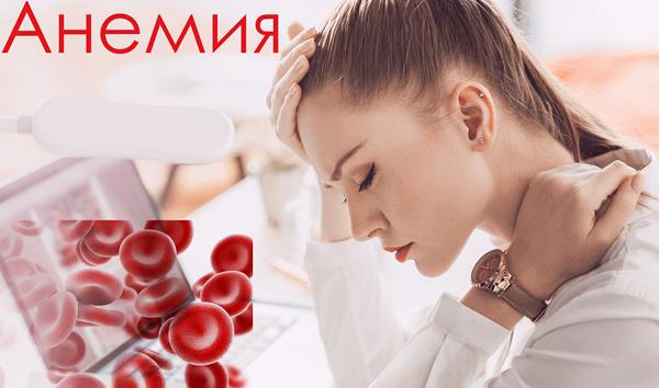 Анемия при миоме