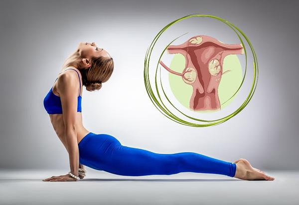 Поговорим о физических упражнениях, разрешенных при миоме матки...
