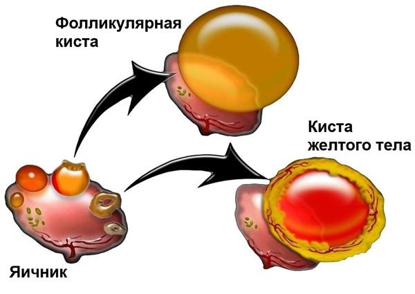 Медикаментозное лечение функциональных кист