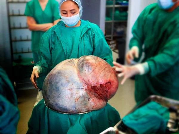 Гигантская цистаденома яичника после удаления