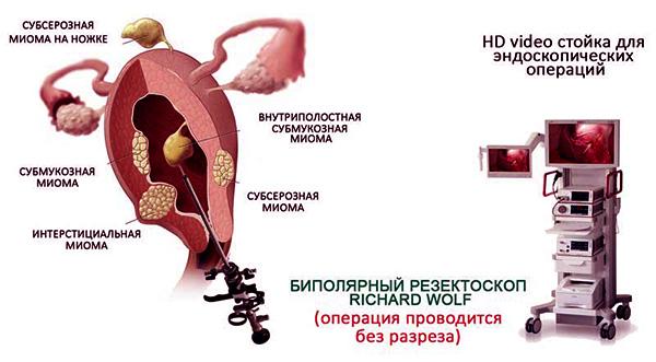 Удаление миоматозного узла с помощью резектоскопа