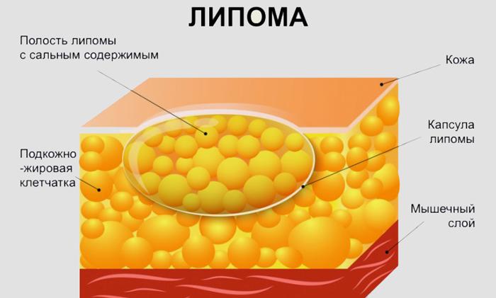 липома