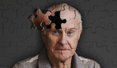 Деменции с тельцами Леви: причины возникновения и факторы риска