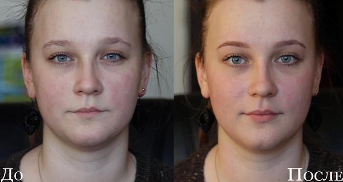 фото коррекции до и после
