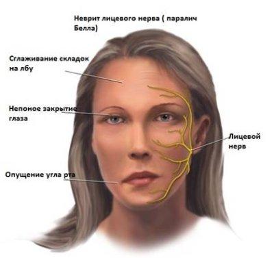 Лицевой нерв, воспаление: симптомы у взрослых и детей
