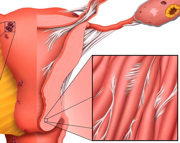 Спайки при эндометриозе могут быть причиной бесплодия