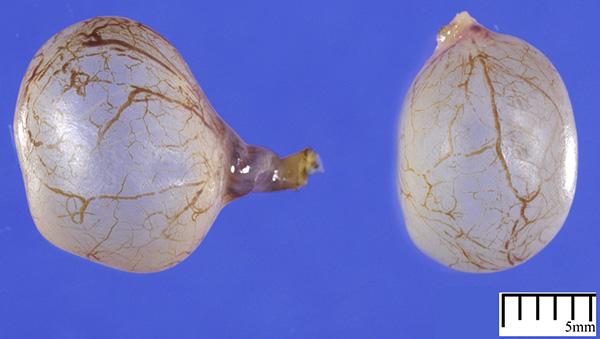 Параовариальная киста (макропрепарат)