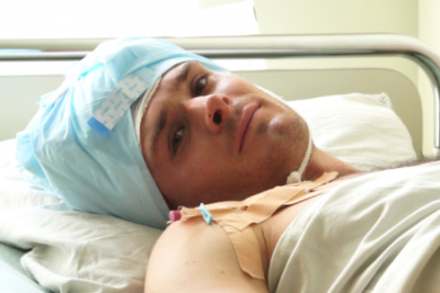 Хирургическое лечение эпилепсии: субпиальные рассечения