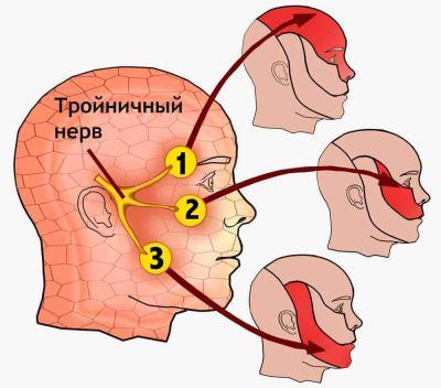 Невралгия тройничного нерва: симптомы и лечение, причины заболевания
