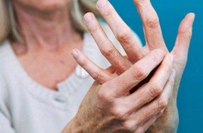 Рассеянный склероз на МРТ: показания и противопоказания