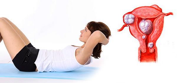 Давайте разбираться, опасно ли делать упражнения на пресс при наличии миомы...