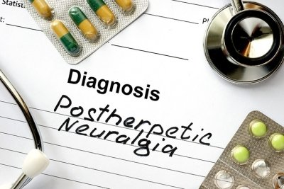 Постгерпетическая невралгия: диагностика