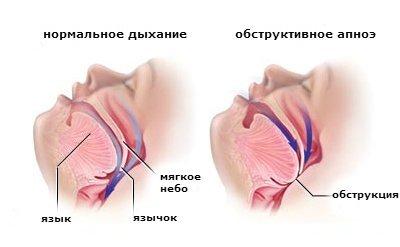 Синдром обструктивного апноэ сна: общая информация