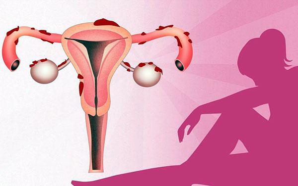 Выясняем, по каким признакам можно обнаружить эндометриоз и как не запустить болезнь...