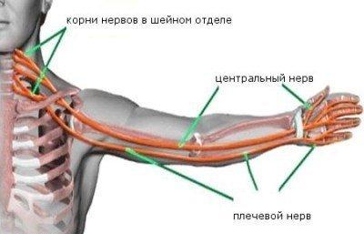 Неврит плечевого нерва: что это такое?