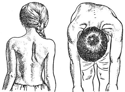Точная диагностика сколиоза ключ к правильному лечению