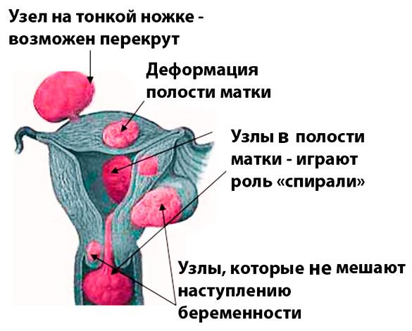Осложнения при различной локализации миоматозных узлов