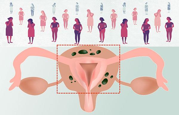Выясняем, в каких случаях при эндометриозе требуется удаление матки и каковы последствия этой операции...